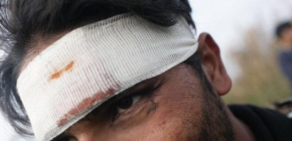 man with bloody bandaged head